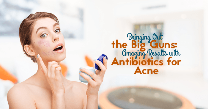 Bringing Out the Big Guns: Amazing Results with Antibiotics for Acne